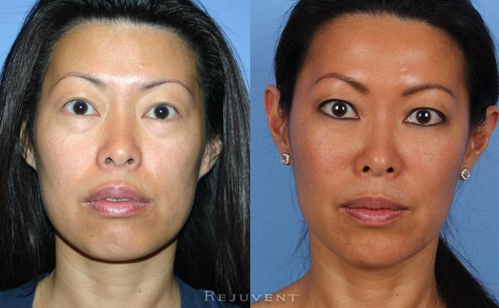 Under eye rejuvenation with derma fillers in Scottsdale