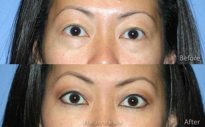 Under eye rejuvenation using derma fillers in Scottsdale