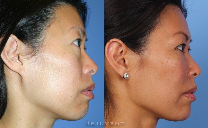Rejuvenation Under eyes with derma fillers in Scottsdale