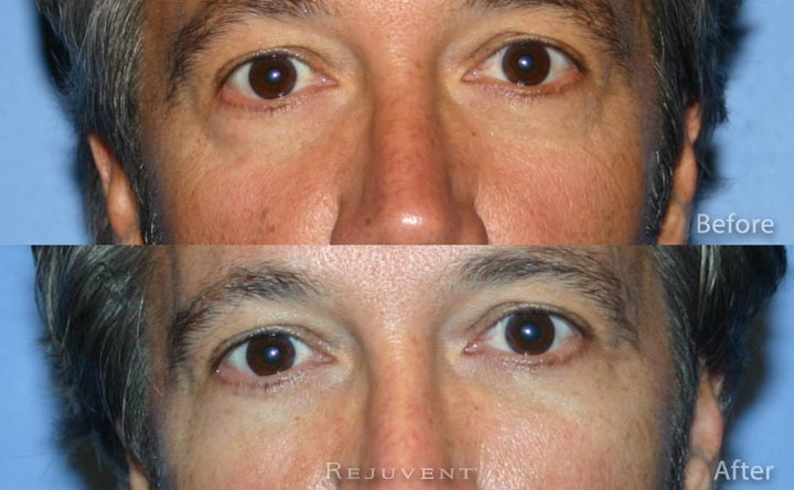 Perlane fillers for Under eye rejuvenation Scottsdale