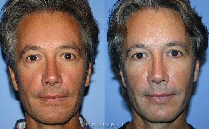 Under Eye rejuvenation with fillers in Scottsdale