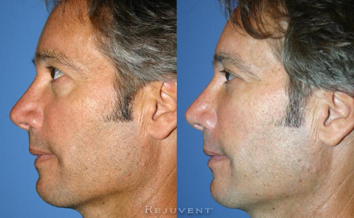 Under Eye rejuvenation at Rejuvent Scottsdale