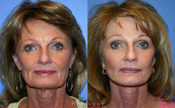 Facelift Patient at Rejuvent