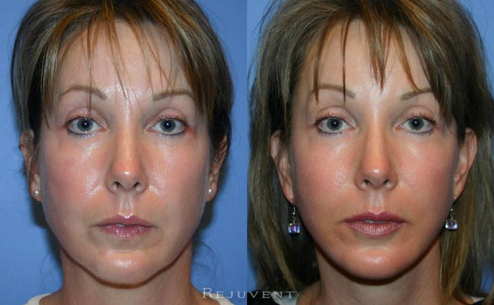 Patient Facelift before and after