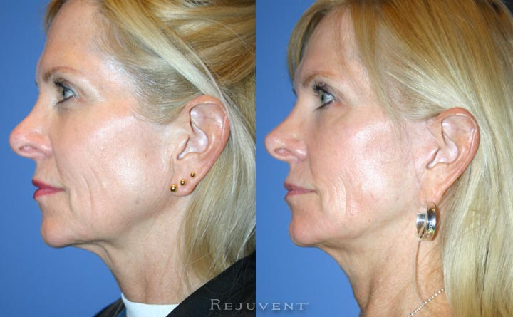 Facelift Rhytidectomy Patient Before and After