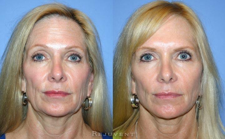 Facelift Rhytidectomy