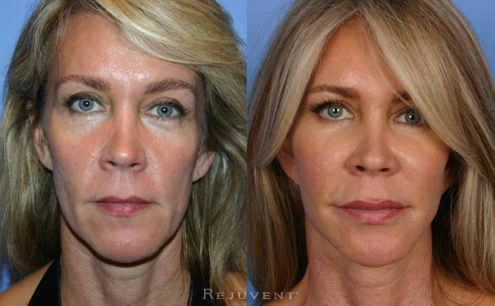 Facelift Surgery and Botox at Rejuvent
