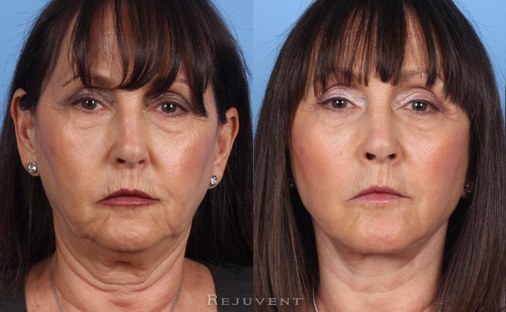 Neck and Face Lift Patient 2