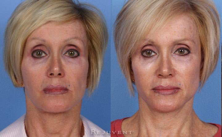 Facelift with Jowl and Jawline Improvement