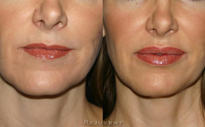 Lips with Restylane, Juvederm