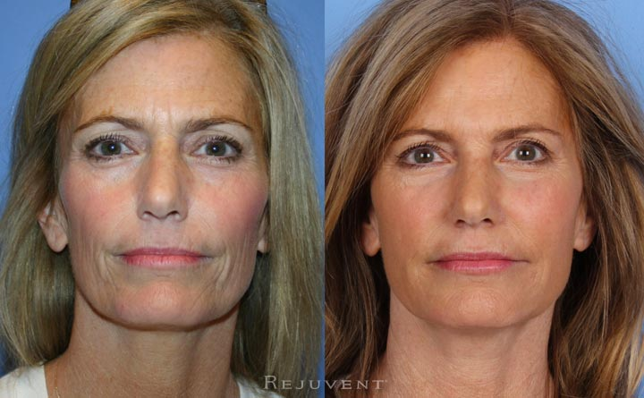 This patient underwent Liquid facelift as well as under eye rejuvenation at Rejuvent Scottsdale.