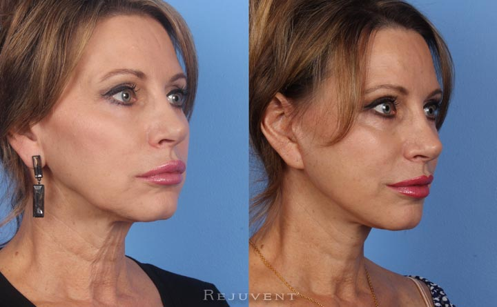 Facelift with volumizing fillers around moth and lips in Scottsdale