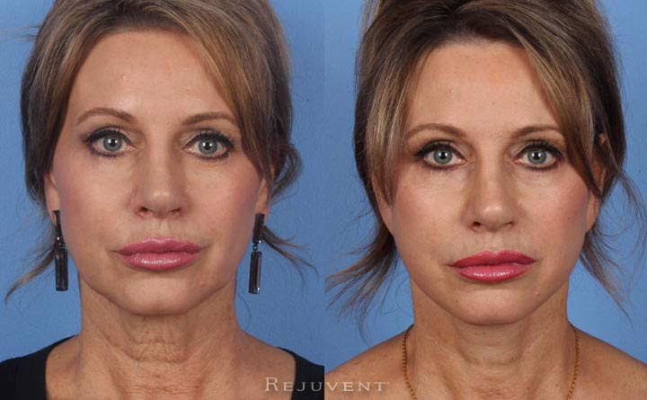 Facelift in Scottsdale with volumizing fillers around moth and lips