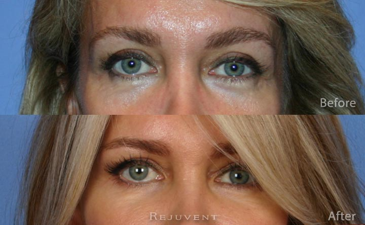 Liquid Facelift andf Under eye rejuvenation, Scottsdale AZ