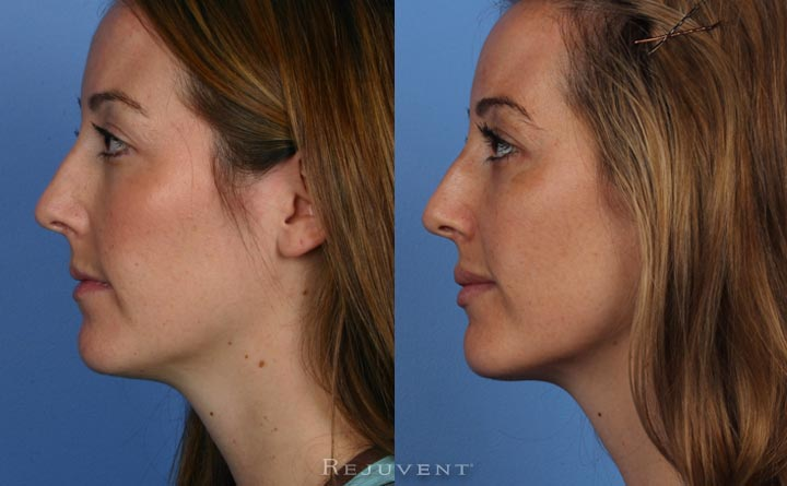 Liquid Facelift, Cheek Enhancement, Botox and Voluma