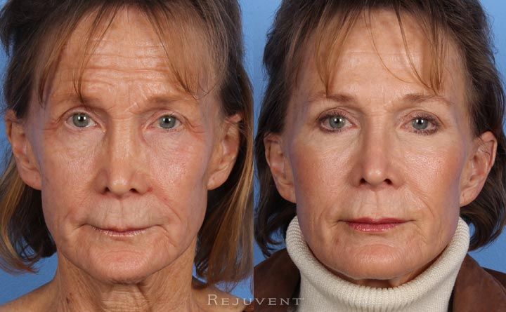 Rejuvent Liquid Facelift