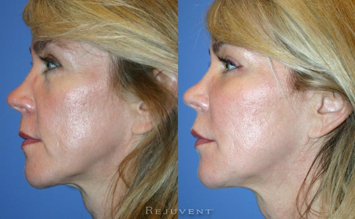 Liquid Facelift non surgery facelift