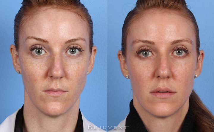 Liquid Facelift with Voluma, Restylane, Botox