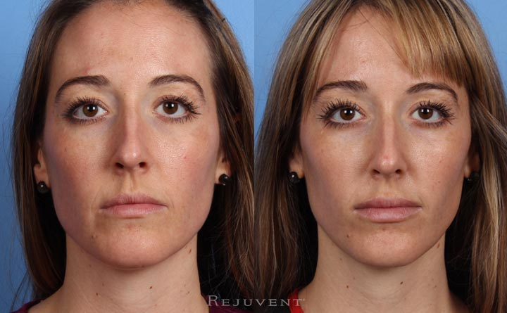 Liquid Facelift, Cheek Enhancement Botox and Voluma 2