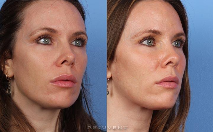 Liquid Facelift, Dysport, Botox, Juvederm, Restylane Patient