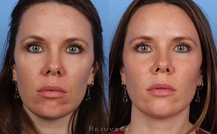 Liquid Facelift Multiple Areas Patient 2