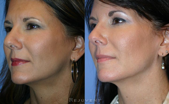 Liquid Facelift Patient at Rejuvent