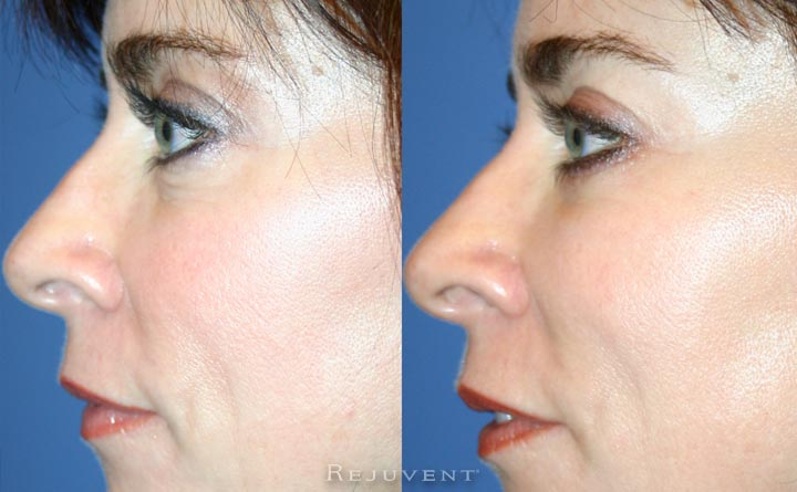 Lower Bleph Eyelid Surgery Frontal view Rejuvent Scottsdale