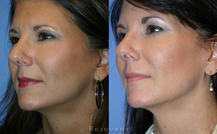 Lower face rejuvenation with fillers