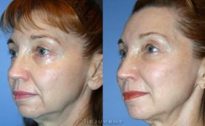 See more Rejuvent Cheek Enhancement Photos