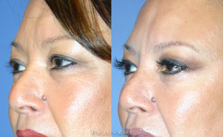 Lower Bleph Eyelid Surgery side view