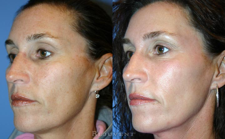 FotoFacial IPL Rejuvapen Microneedling  Pigment and Skin Improvement