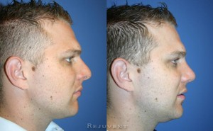 Rejuvent Rhinoplasty patient featured on New Beauty Magazine
