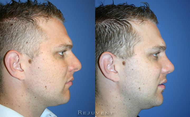 Rhinoplasty male patient Rejuvent Scottsdale