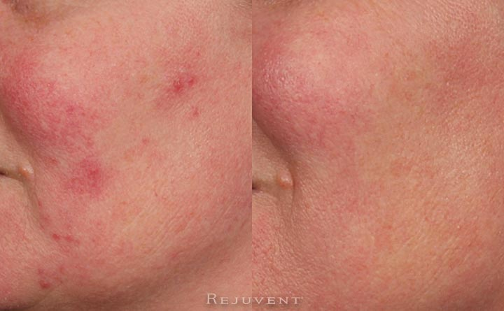 Rosacea and Redness Reduction