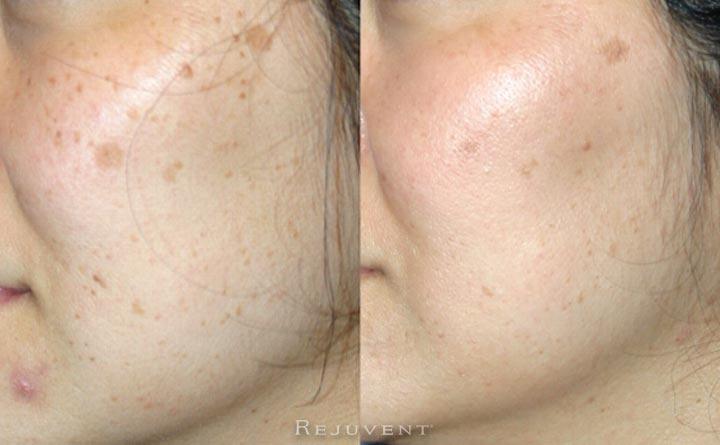Skin Texture, Pigmentation