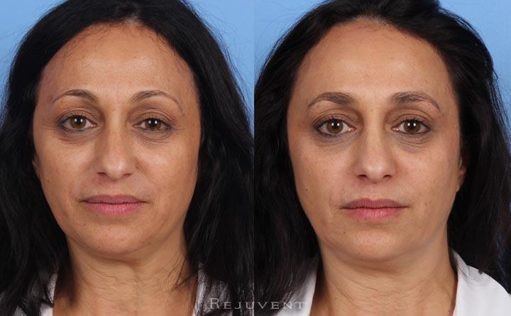 Fotofacial, Chemical Peels, Skincare Texture