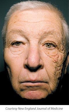Truck driver damaged skin