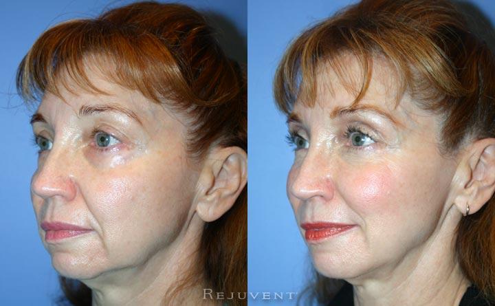 Volumizing filler under eye rejuvenation