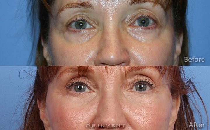 Undereye Rejuvenation with volumizing Fillers such as Perlane