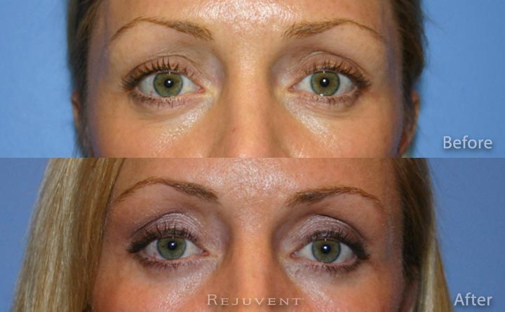 Lower eyelid surgery at Rejuvent Scottsdale
