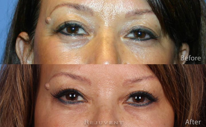 Lower and Upper eyelid surgery Blepharoplasty Scottsdale