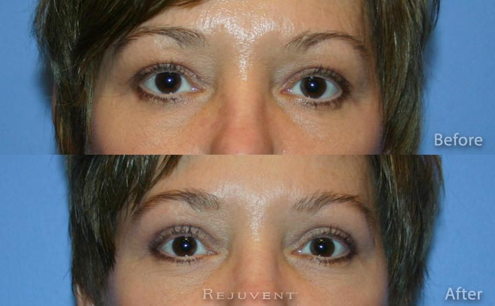 Upper Bleph Eyelid Surgery Rejuvent Scottsdale