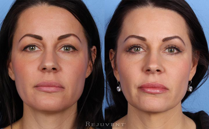Upper and Lower eyelid surgery at Rejuvent, Scottsdale.