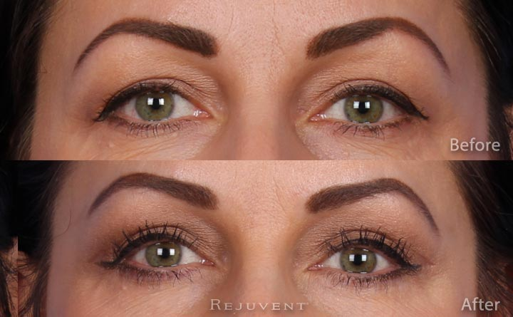 Lower and Upper eyelid surgery at Rejuvent, Scottsdale.