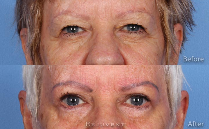 Upper and Lower Blepharoplasty in Scottsdale AZ