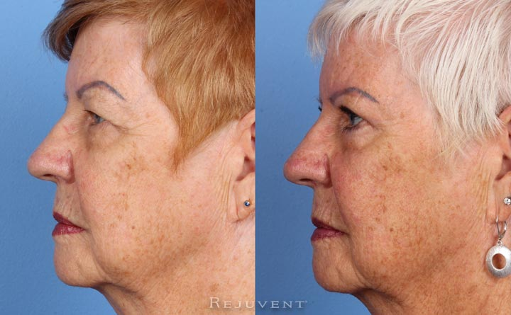 Upper - Lower blepharoplasty in Scottsdale AZ