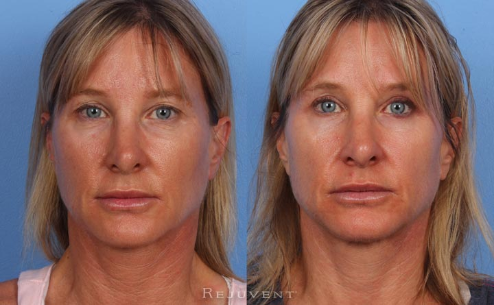Lower and Upper eyelid surgery Female