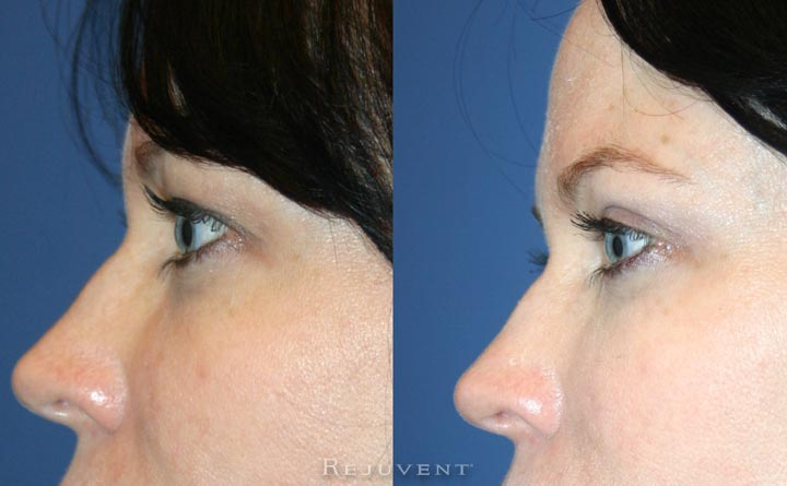 Upper Bleph Eyelid Surgery Side View