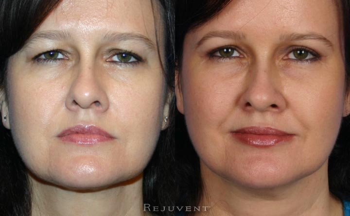 Upper Belph eyelid surgery at Rejuvent