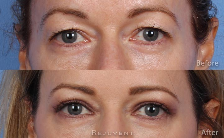 Upper Bleph Eyelid surgery Eyes view